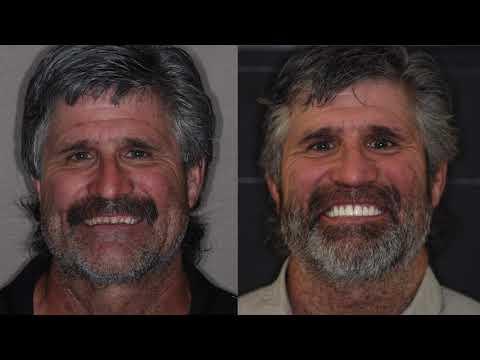Emergency Cosmetic Dentist Near Yakima | 509728932 | tewdental.com