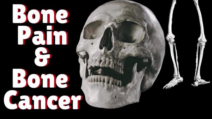 Bone Pain Is A Common Symptom Of Bone Cancer