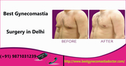 Best Gynecomastia Surgery in Delhi