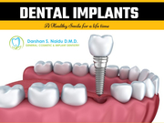 Trusted Dental Care for Implants