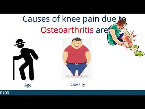 OSTEOARTHRITIS   HOPELAND MEDICAL TOURISM   MEDICAL TOURISM AGENCY   HEALTH FACILITATOR