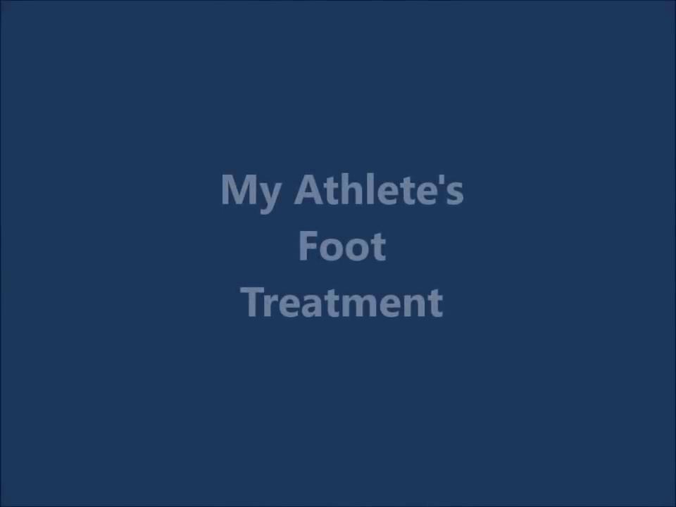 Awesome Athlete's Foot Treatment - Puriya Wonder Balm