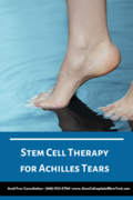 Stem cell therapy for Achilles tears