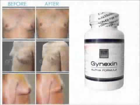 https://gynexinreviews.de/Gynexin Will It Help You Have A Flat Chest?