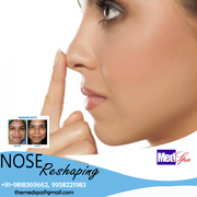 Nose Job Rhinoplasty Surgery in Delhi