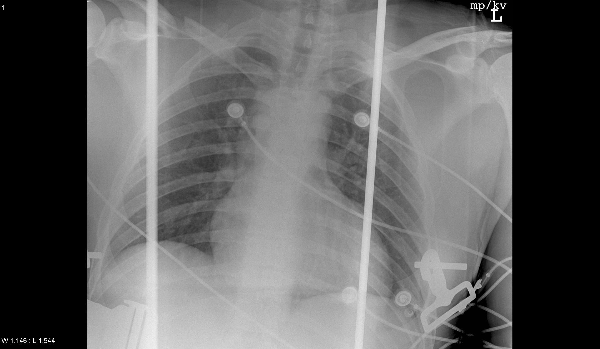 Emergency and Trauma Radiology