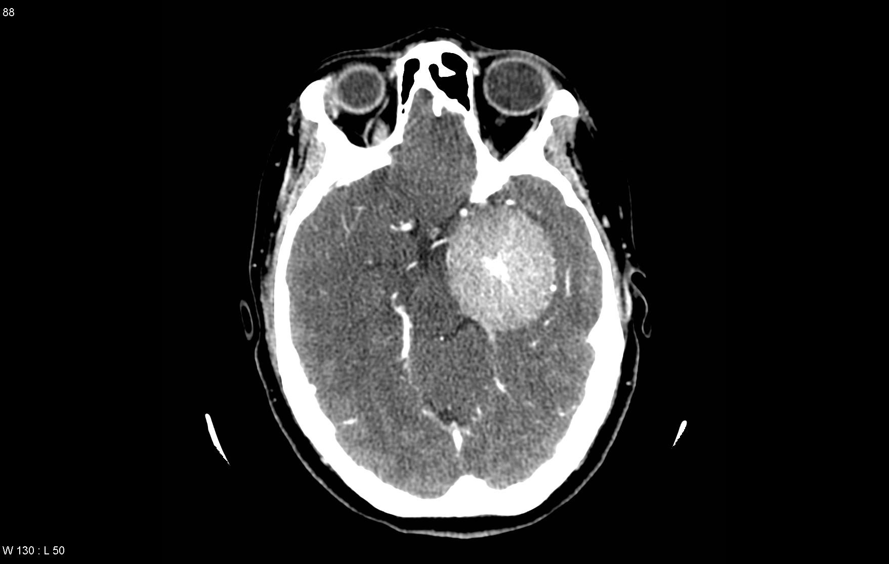Meningioma CT