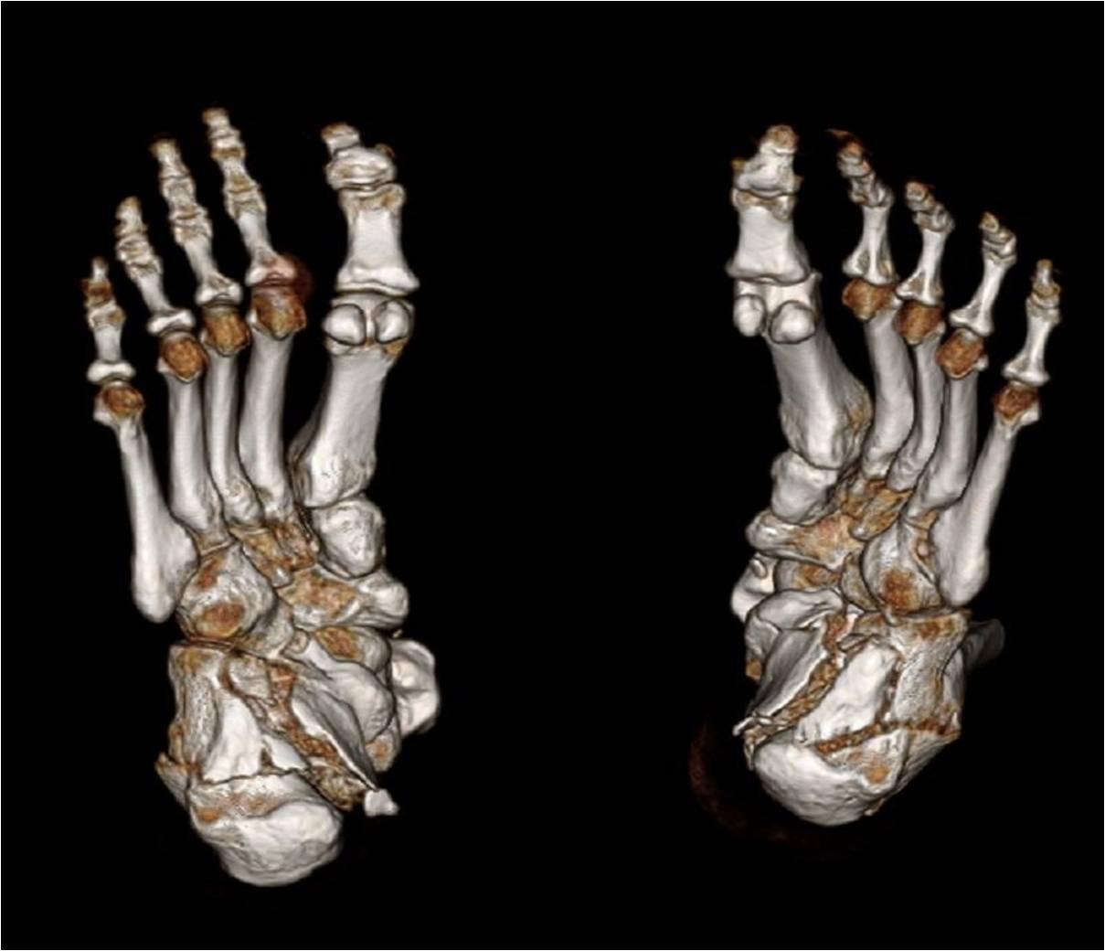 Bone CT