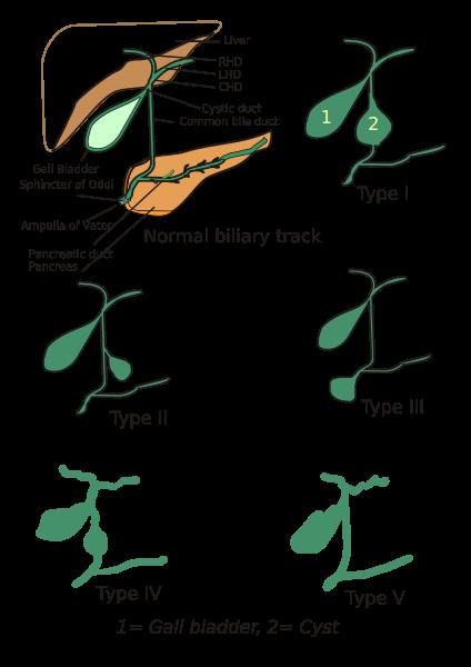 Choledochal cyst (type IV)