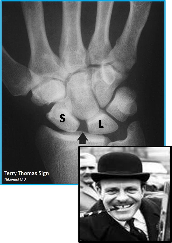 Terry Thomas sign