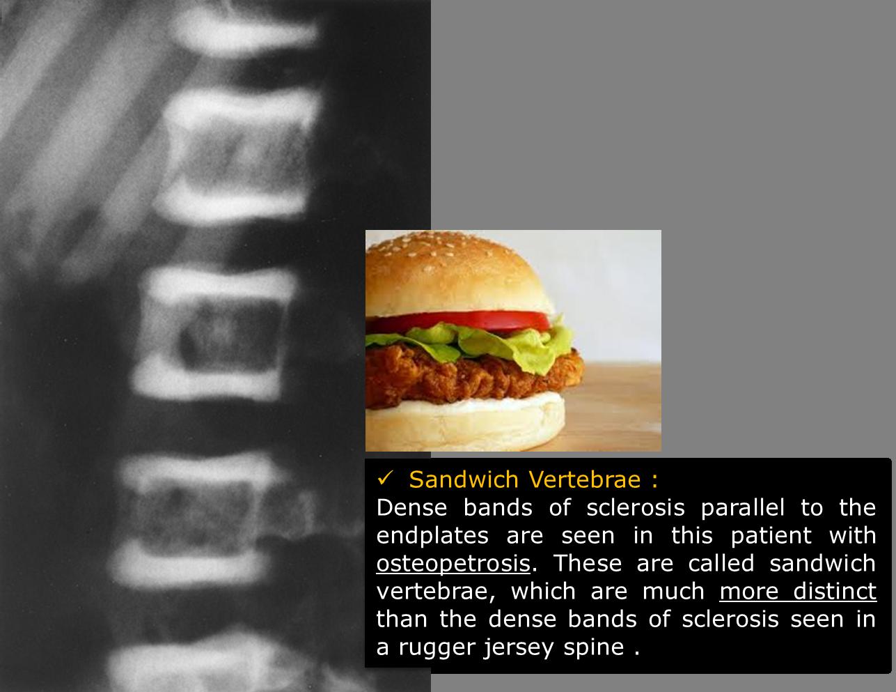 Sandwich Vertebrae - Osteopetrosis