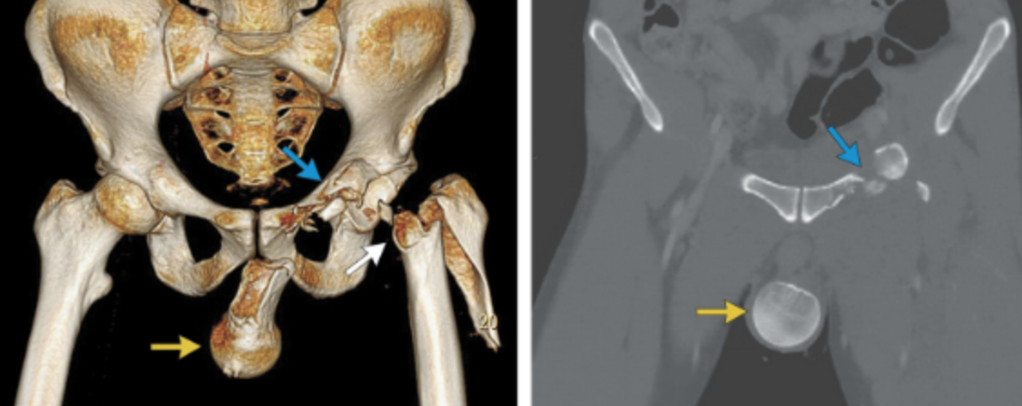 Femoral head herniates into scrotum. Not your ordinary hip fracture.