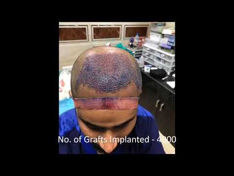 4000 Grafts, Best Hair Transplant in Chennai @DERMACLINIX | Dr Ariganesh Chandrasegaran, MD