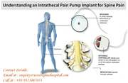 Intrathecal Pain Pump Implant for Spine Pain, India