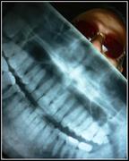 JR10Radiografia421 - Mi panorámica dental.