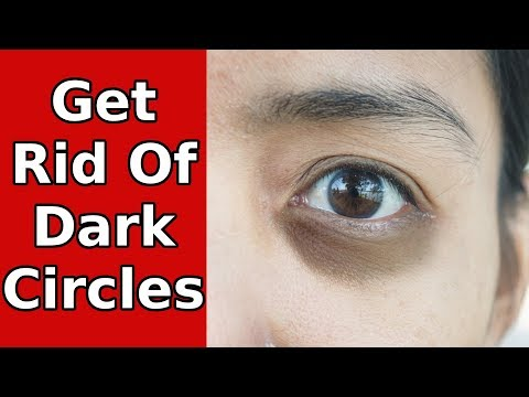 3 Unusual Home Remedies For Dark Circles Around Eyes