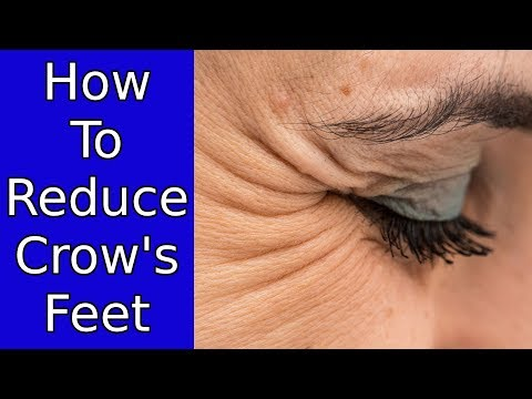 4 Things You Can Do To Reduce Crow's Feet - Home Remedies For Wrinkles Around Eyes