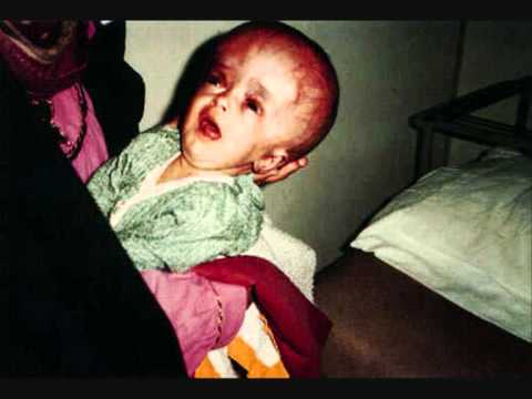 Action Against Child Cruelty in Orphanages Charity Video.wmv
