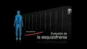 SINTOMATOLOGIA CLINICA DE LA ESQUIZOFRENIA