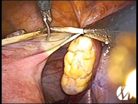 Single Site LAVH (Laparoscopic Assisted Vaginal Hysterectomy) - Single Port - Single Incision - SILS