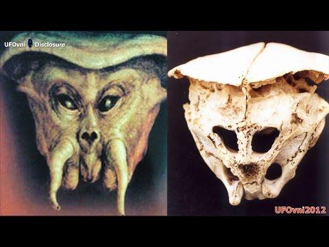 The Rhodope Skull: Skull Was it a True ALIEN ?