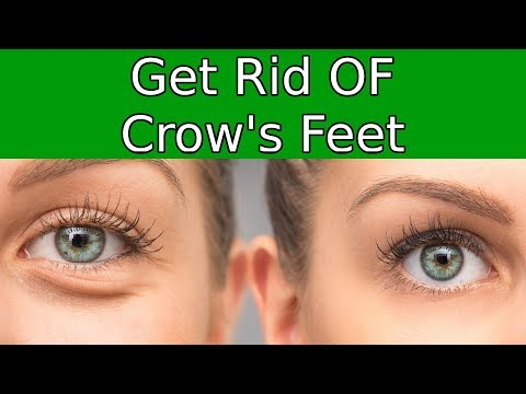 3 Uncommon Ways To Dominate Crow's Feet Around Your Eyes