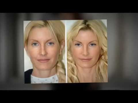 LuxDerma Skin Cream  Benefits