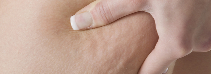 What Is Breast Cellulitis? – RecruitingBlogs
