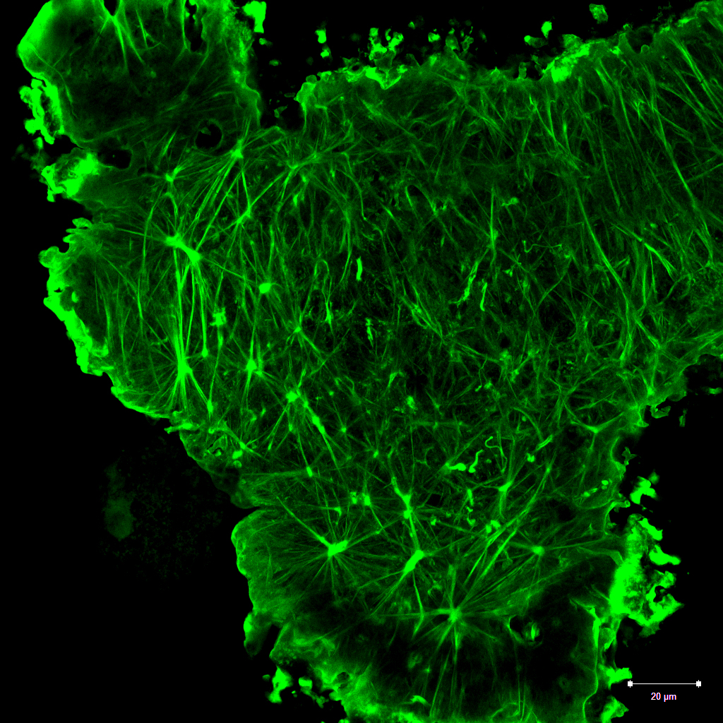 great actin 2_Maximum intensity projection