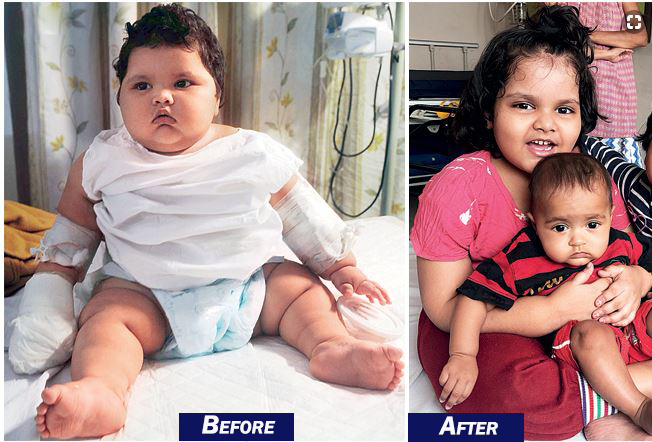 THE STORY IS OF YOUNG ZOYA HAS BEEN HEART WRENCHING AS SHE HAS BEEN FACING THE PROBLEM OF OVERWEIGHT