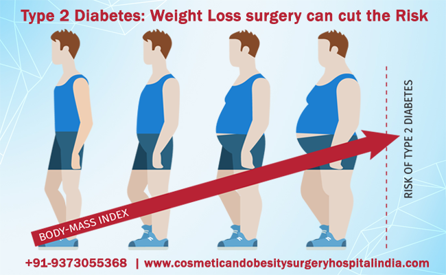 Type 2 Diabetes: Weight Loss surgery can cut the Risk