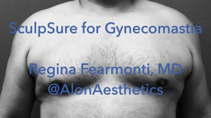 is gynecomastia permanent