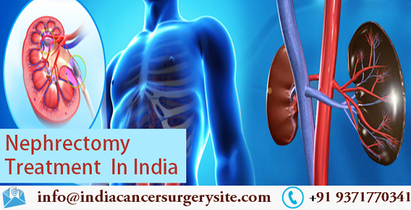 Best Nephrectomy Treatment In India