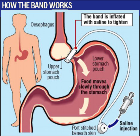 Avail The Low Cost Gastric Band Surgery in India
