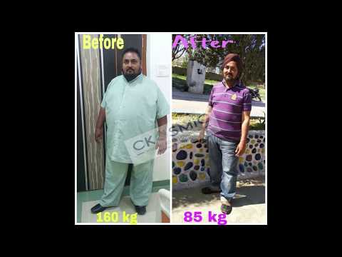 PATIENT TESTIMONIAL | DR AMIT SOOD | WEIGHT LOSS SURGERY | WEIGHT LOSS SURGEON