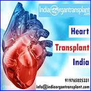 Heart Transplant Surgery in India at an Affordable Cost