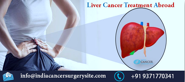 Liver Cancer Treatment Abroad
