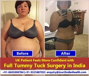 UK Patient Feels More Confident with Full Tummy Tuck Surgery in India