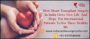How Heart Transplant Surgery In India Gives New Life  And Hope  For International Patients To live There Healthy life