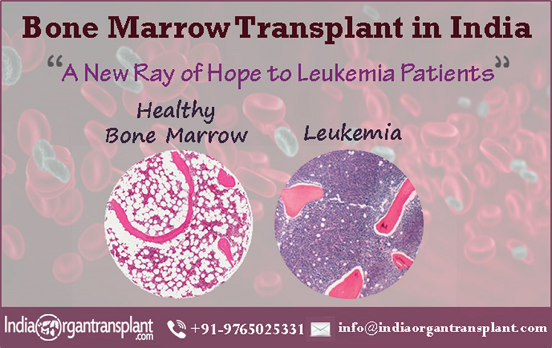 Bone Marrow Transplant: A hope for a Leukemia Patient