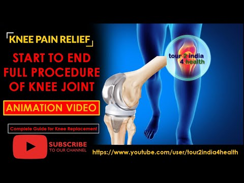 Start To End Full Procedure of Knee Joint Animation Video India