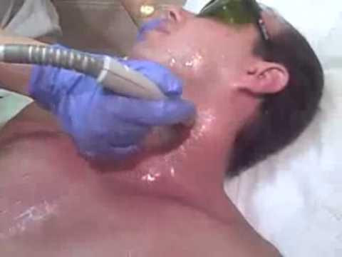 Laser Hair Removal Miami: Laser Hair Removal Men