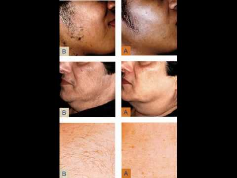 Laser Hair Removal Miami: Before and After