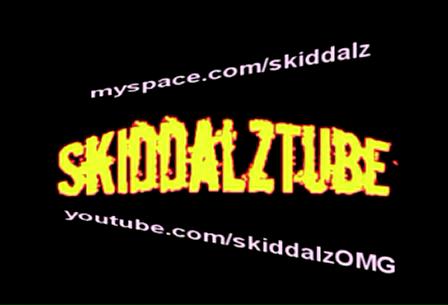 SkiddalzTube