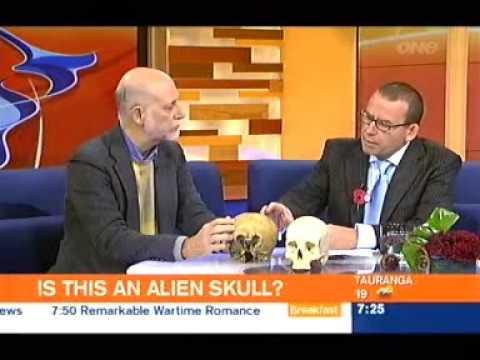 Alien-Human Hybrid Lloyd Pye and the Starchild Skull on the Breakfast show, New Zealand 24/4/09