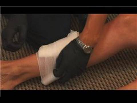 Emergency Medical Care : How to Treat an Open Fracture During First Aid