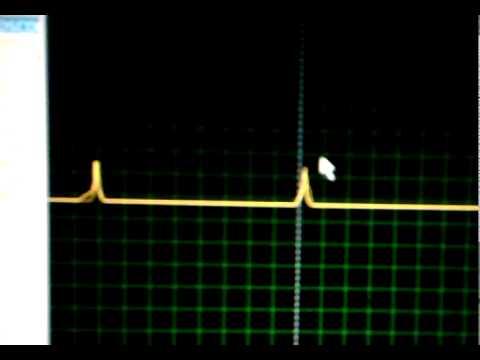 detector de passagem por zero.mp4