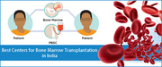 Reasonable Treatment for Bone Marrow Transplant in India