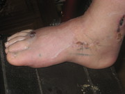 after foot surgery