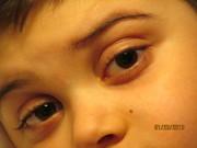 Beautiful eyes!!!